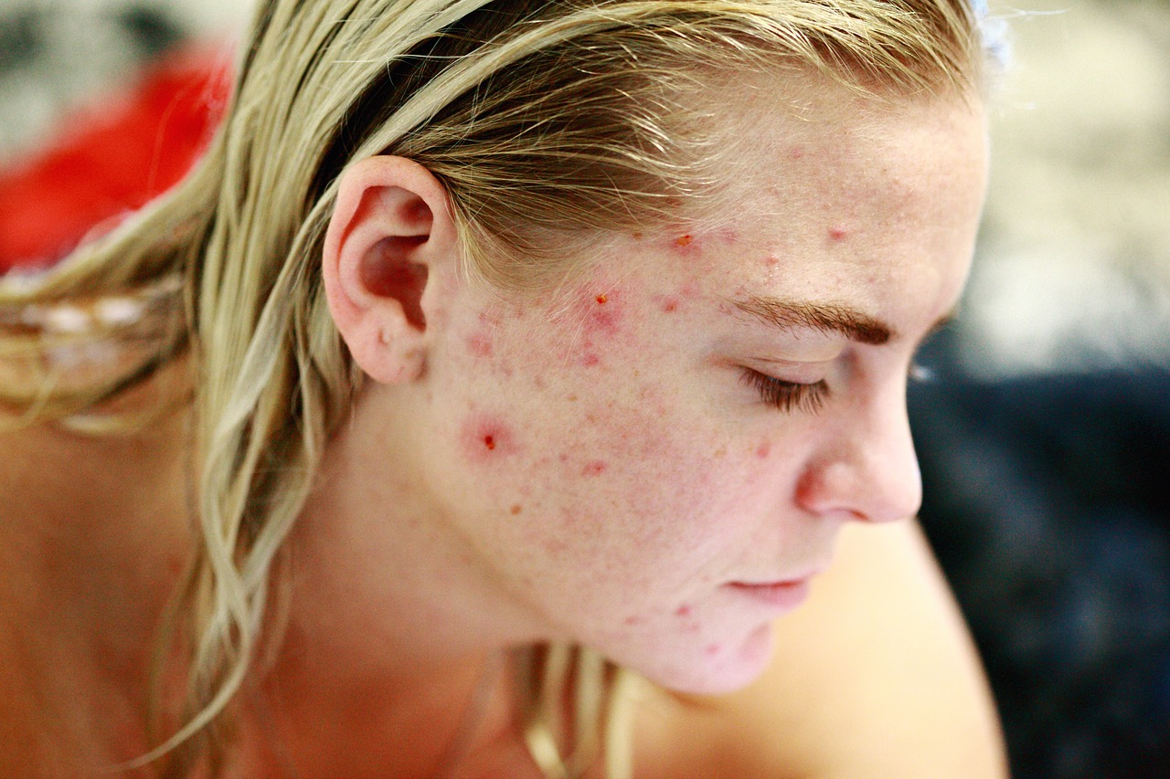 Akne Behandlung - Picken entfernen